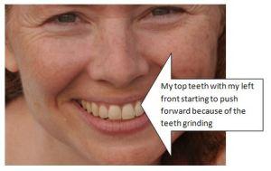 RoomMom's teeth