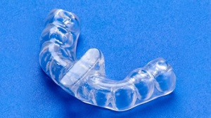 tooth splint